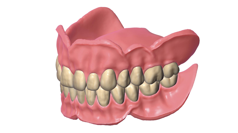 Modul exocad Full Denture
