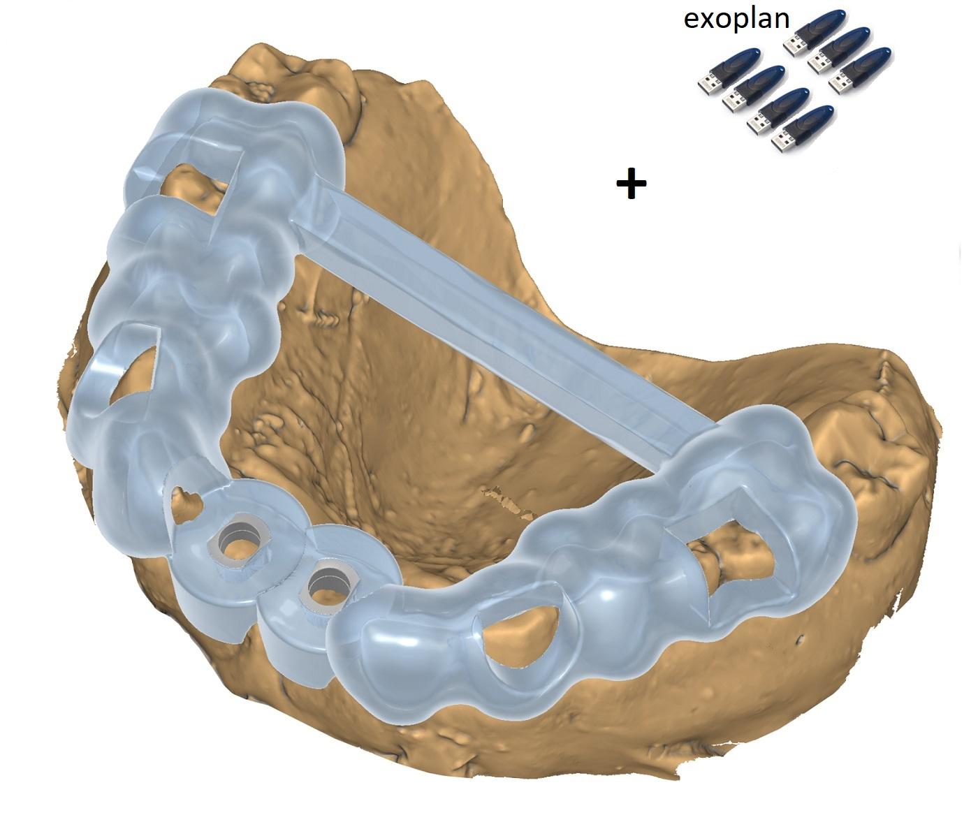 Pachet 7  exoplan Guide Creator
