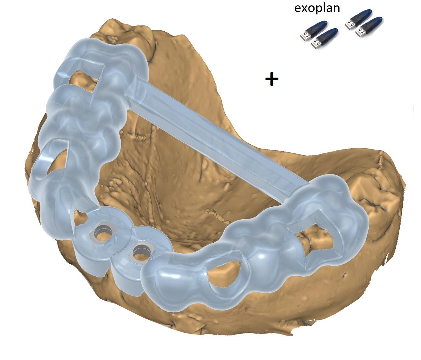 Pachet 4  exoplan Guide Creator