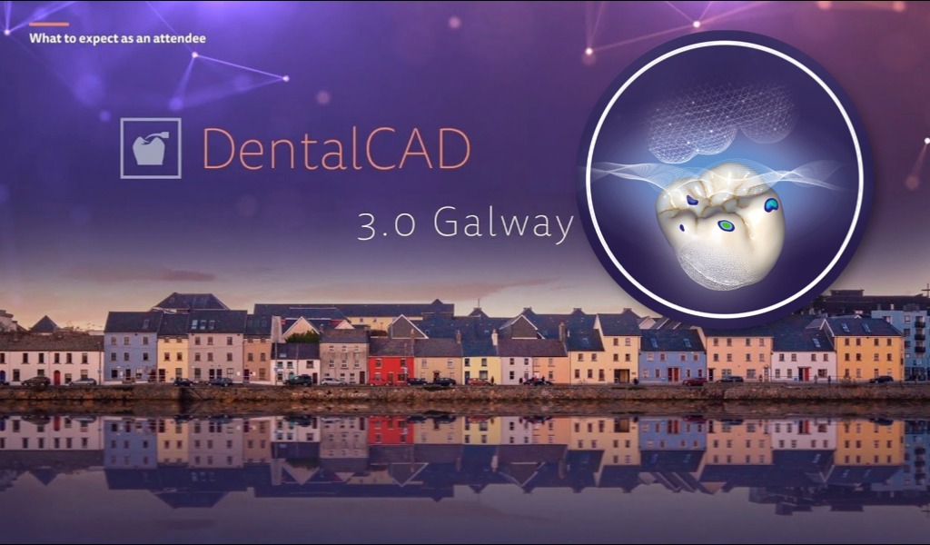 Exocad Basic Galway 3.0